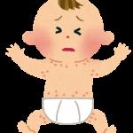 赤ちゃんの乳児湿疹・新生児湿疹